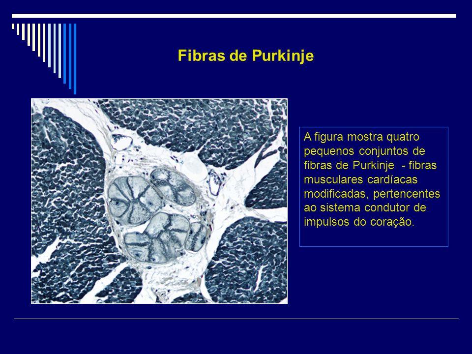 A figura mostra quatro pequenos conjuntos de fibras de Purkinje - fibras musculares cardíacas modificadas, pertencentes ao sistema condutor de impulso