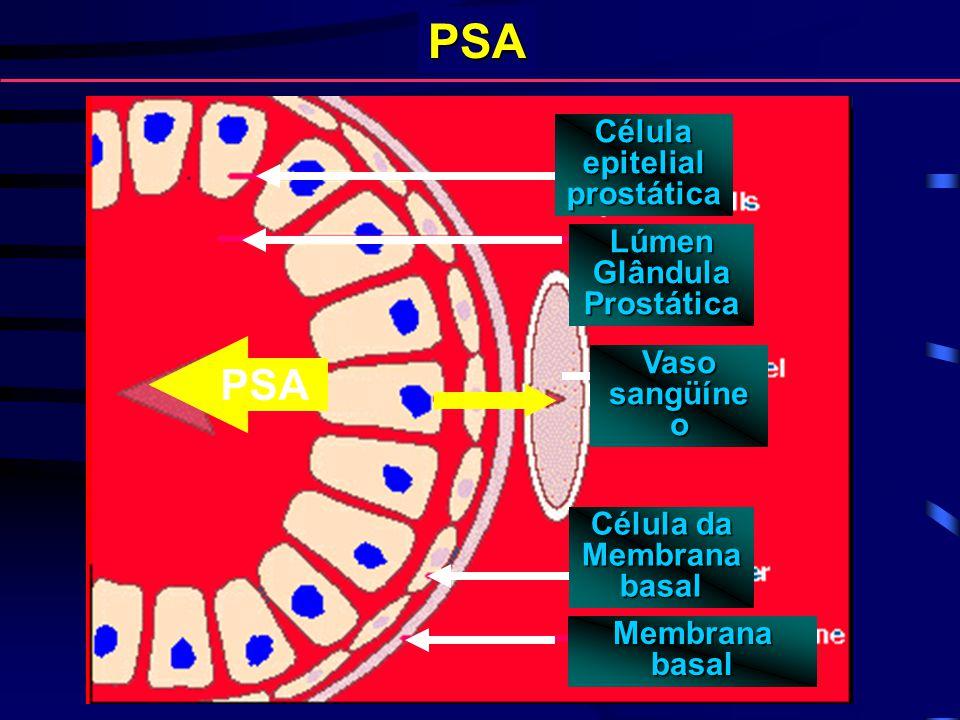 PSA Célulaepitelialprostática Lúmen Glândula Prostática Vaso sangüíne o Célula da Membrana basal Membrana basal PSA