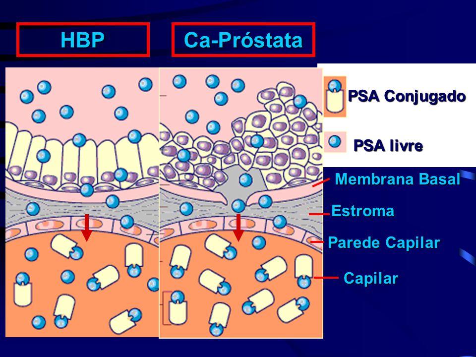 Capilar Parede Capilar Estroma Membrana Basal PSA livre PSA Conjugado HBPCa-Próstata