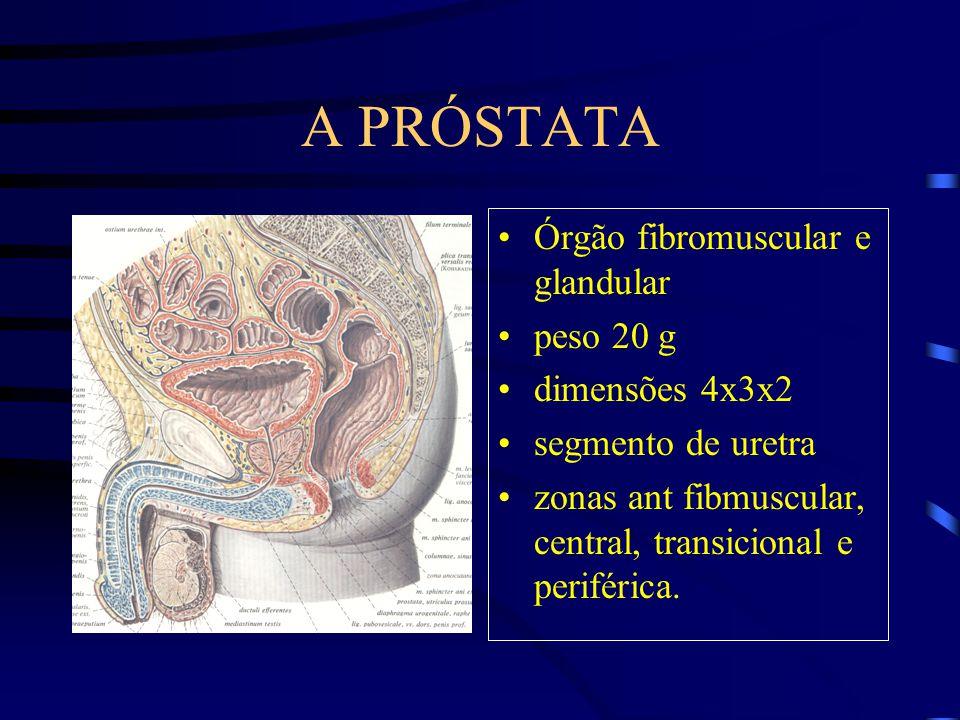 A PRÓSTATA Órgão fibromuscular e glandular peso 20 g dimensões 4x3x2 segmento de uretra zonas ant fibmuscular, central, transicional e periférica.