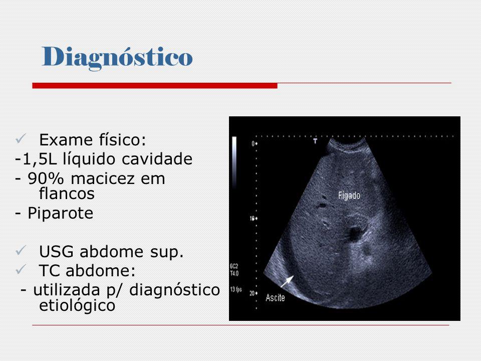Diagnóstico Paracentese Diagnóstica: - Define a etiologia - Diagnostica infecção associada - Complicações são raras -Punção em: pacientes hospitalizados ascite de início recente deterioração clínica COELHO, JCI.