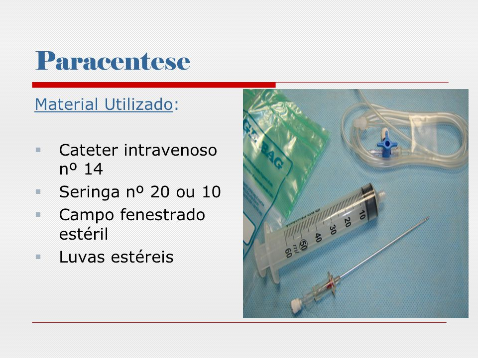 Paracentese Material utilizado Pinças para pequenas cirurgias Frascos de vidro estéril Coletor de vidro ou plástico Equipo de soro Cloridrato de lidocaína a 2% Substâncias para assepsia e anti-sepsia