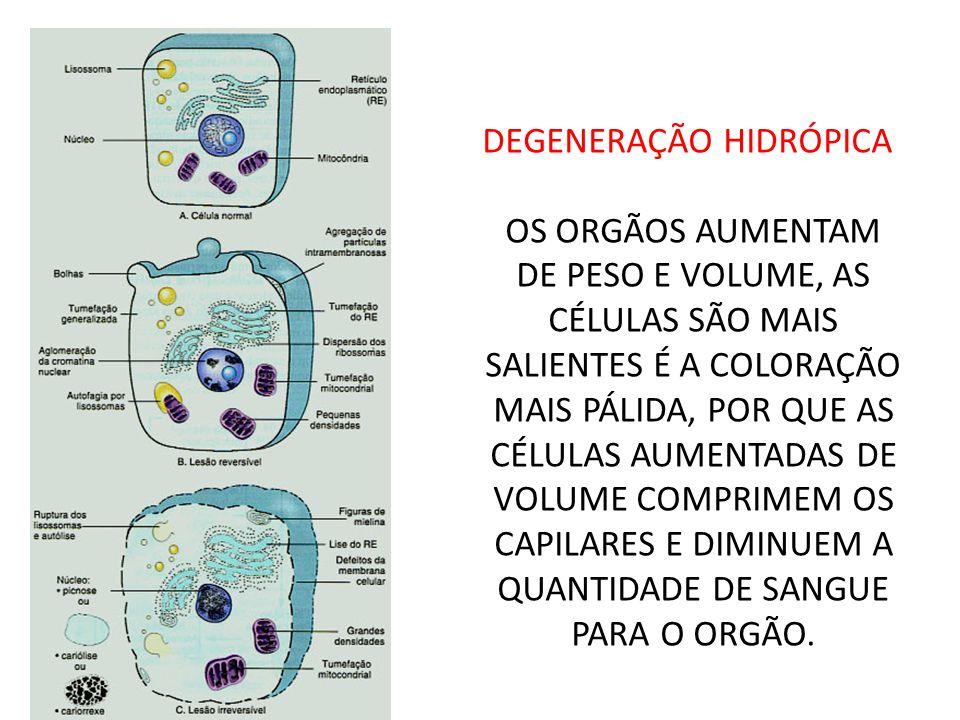 DEGENERAÇÃO HIDRÓPICA OS ORGÃOS AUMENTAM DE PESO E VOLUME, AS CÉLULAS SÃO MAIS SALIENTES É A COLORAÇÃO MAIS PÁLIDA, POR QUE AS CÉLULAS AUMENTADAS DE VOLUME COMPRIMEM OS CAPILARES E DIMINUEM A QUANTIDADE DE SANGUE PARA O ORGÃO.