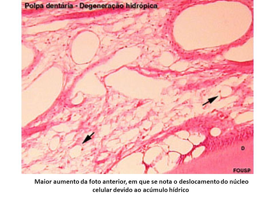 Maior aumento da foto anterior, em que se nota o deslocamento do núcleo celular devido ao acúmulo hídrico