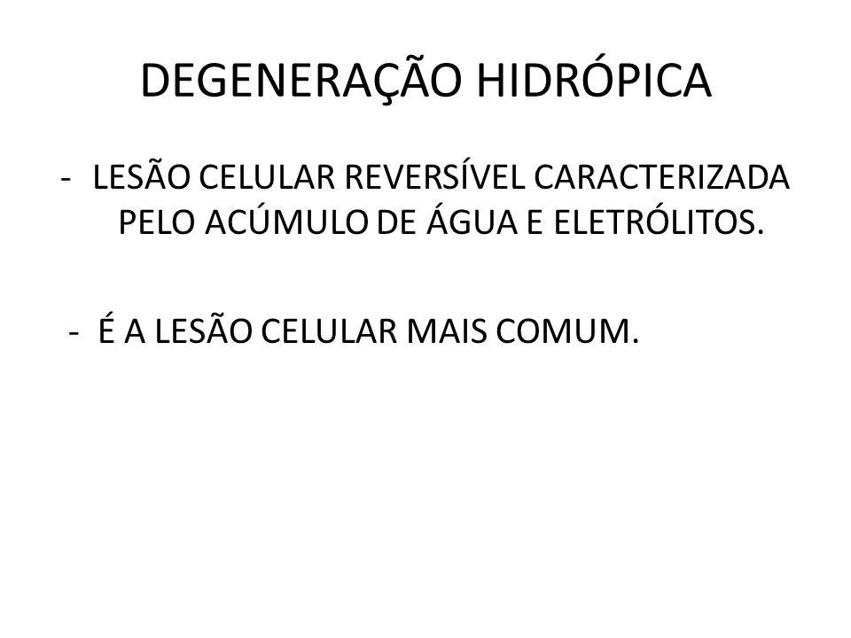 DEGENERAÇÃO HIDRÓPICA -LESÃO CELULAR REVERSÍVEL CARACTERIZADA PELO ACÚMULO DE ÁGUA E ELETRÓLITOS.