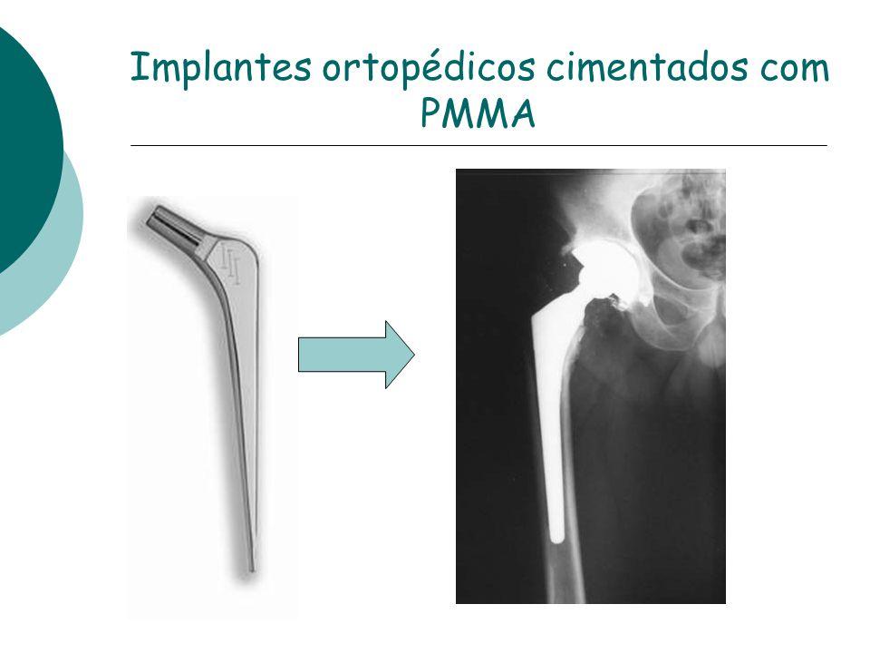 Implantes ortopédicos cimentados com PMMA