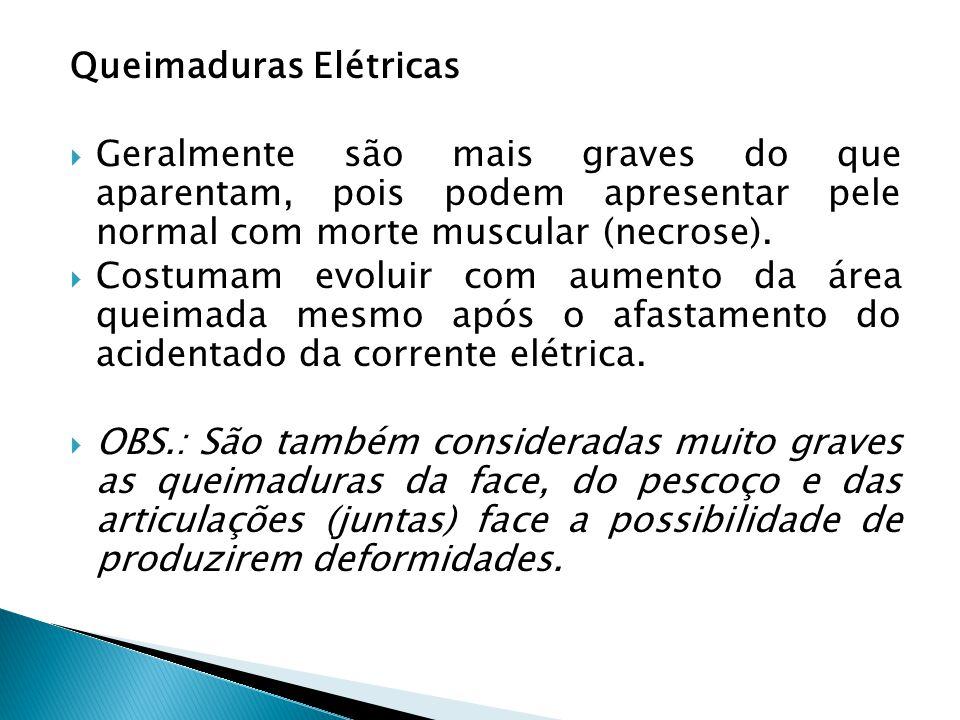 Queimaduras Elétricas Geralmente são mais graves do que aparentam, pois podem apresentar pele normal com morte muscular (necrose). Costumam evoluir co