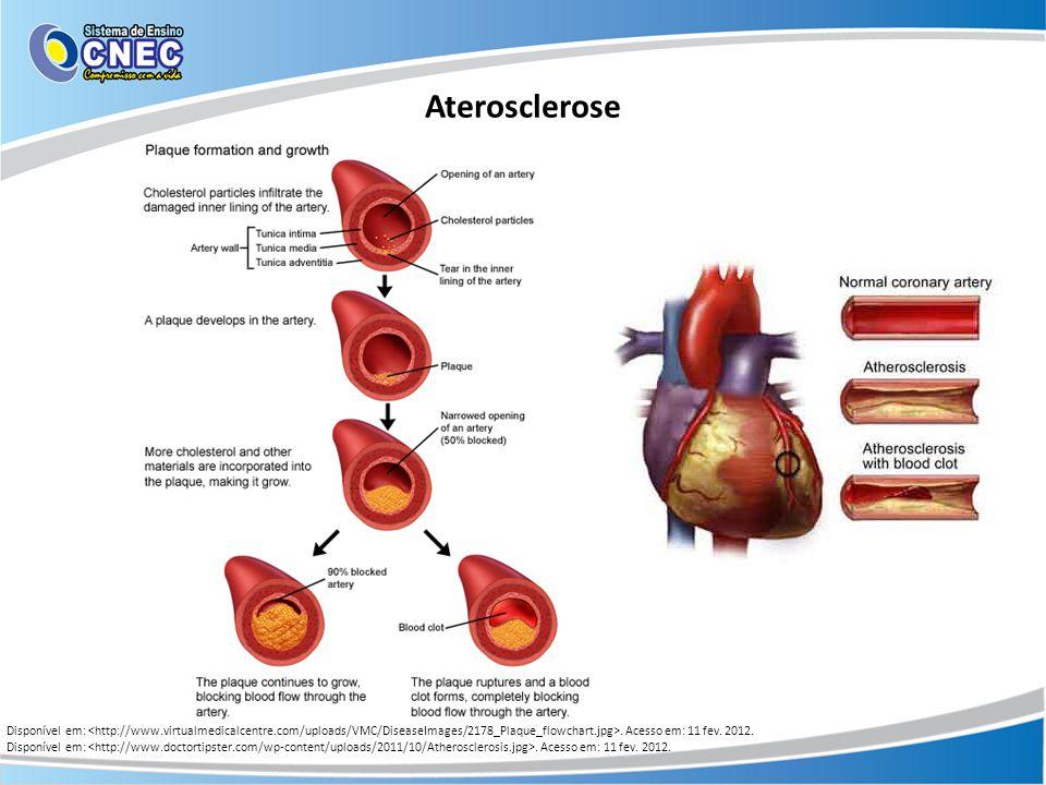 Aterosclerose Disponível em:. Acesso em: 11 fev. 2012.