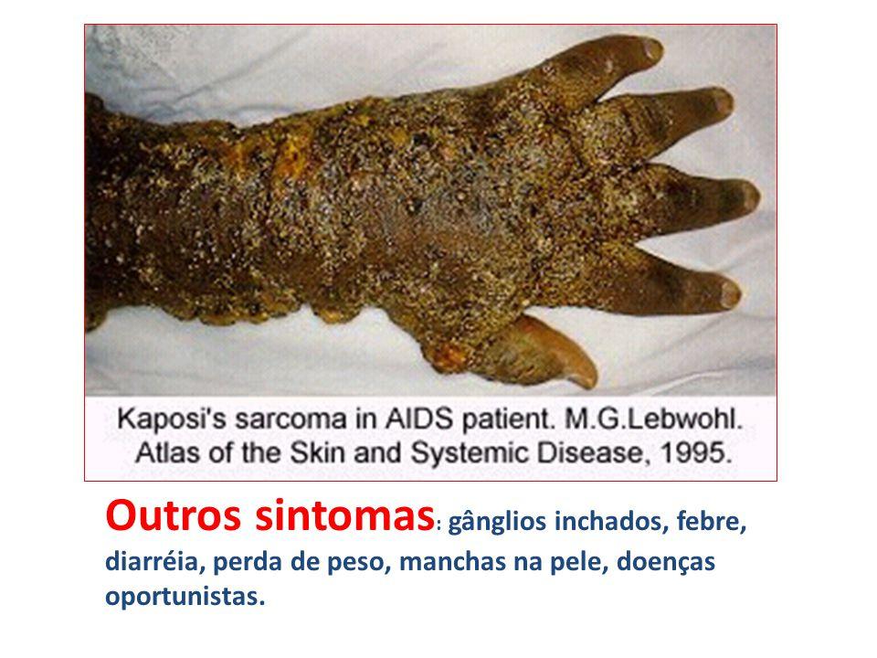 Outros sintomas : gânglios inchados, febre, diarréia, perda de peso, manchas na pele, doenças oportunistas.