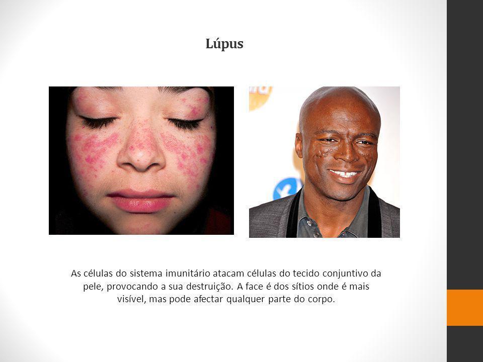 Lúpus As células do sistema imunitário atacam células do tecido conjuntivo da pele, provocando a sua destruição.