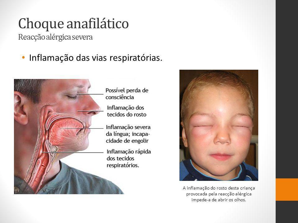 Choque anafilático Reacção alérgica severa Inflamação das vias respiratórias.