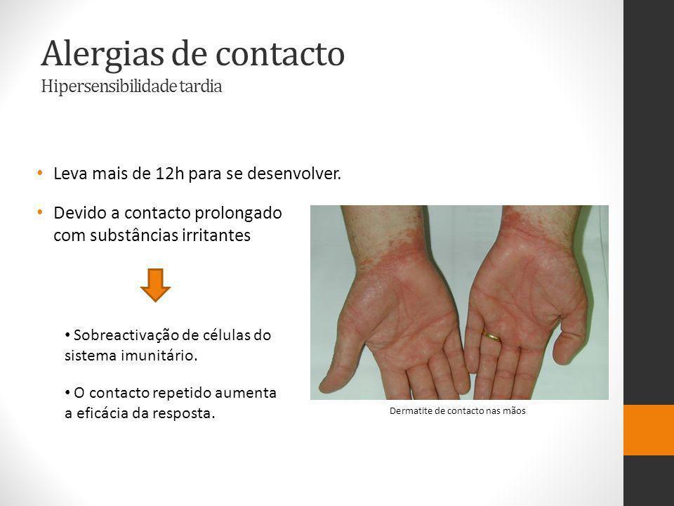 Alergias de contacto Hipersensibilidade tardia Leva mais de 12h para se desenvolver.