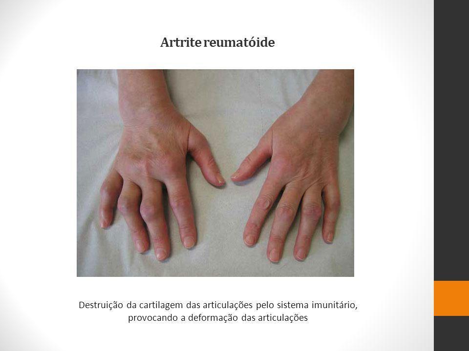 Artrite reumatóide Destruição da cartilagem das articulações pelo sistema imunitário, provocando a deformação das articulações