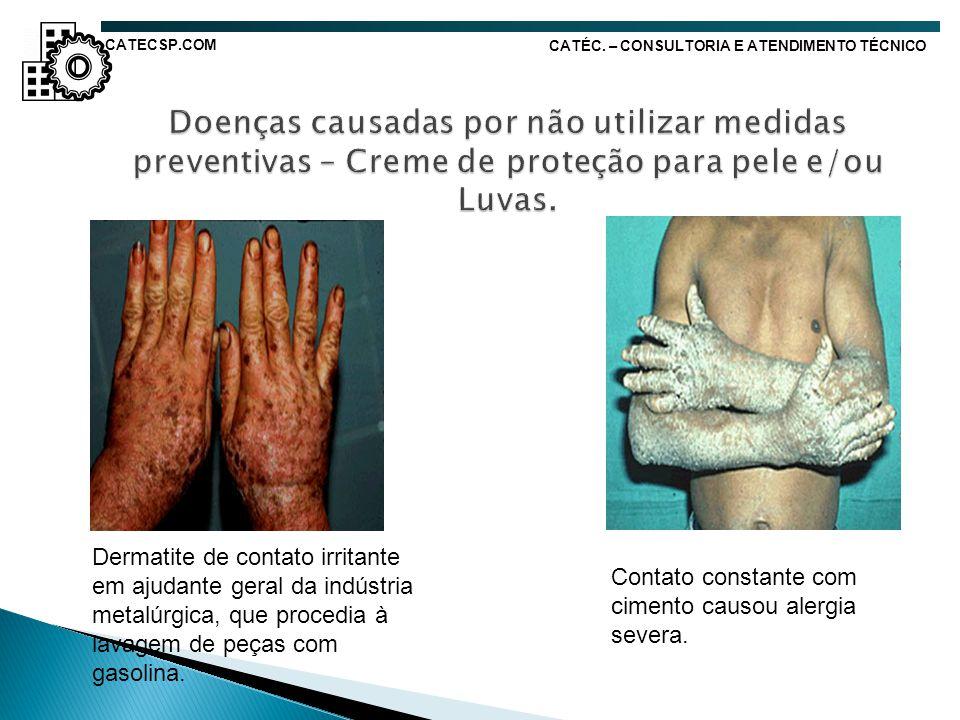 Dermatite de contato irritante em ajudante geral da indústria metalúrgica, que procedia à lavagem de peças com gasolina. Contato constante com cimento