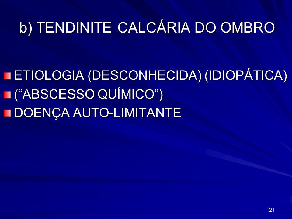 21 b) TENDINITE CALCÁRIA DO OMBRO ETIOLOGIA (DESCONHECIDA) (IDIOPÁTICA) (ABSCESSO QUÍMICO) DOENÇA AUTO-LIMITANTE
