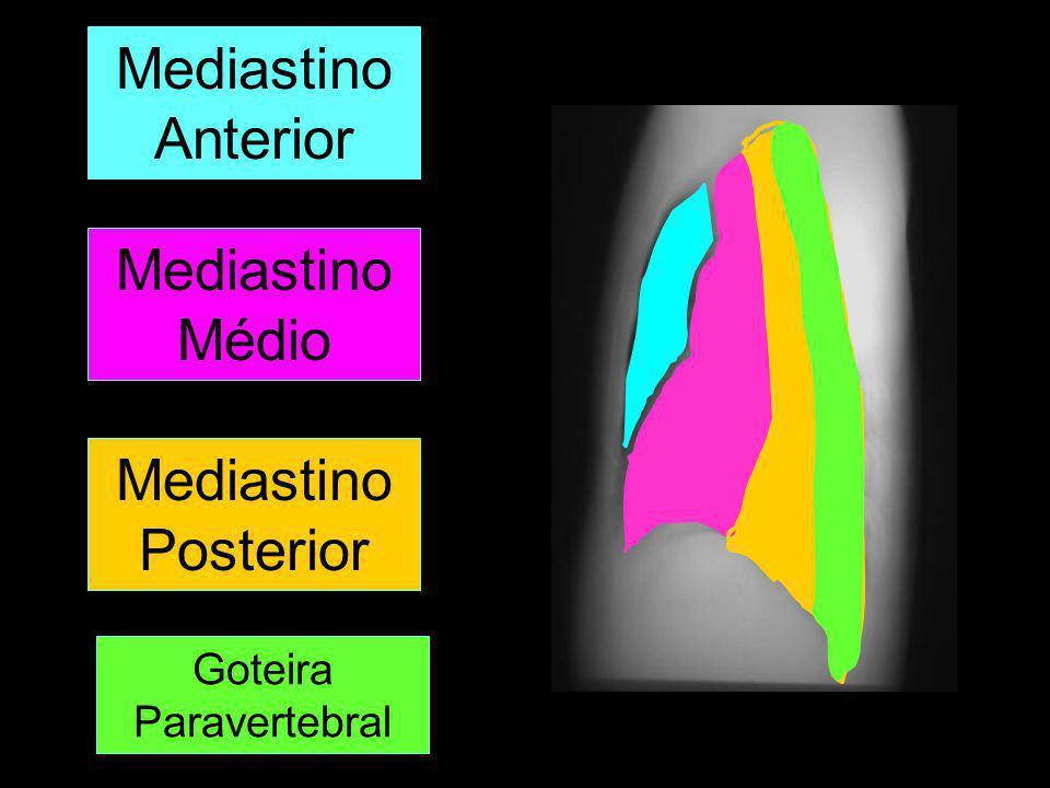 Mediastino Anterior Mediastino Médio Mediastino Posterior Goteira Paravertebral