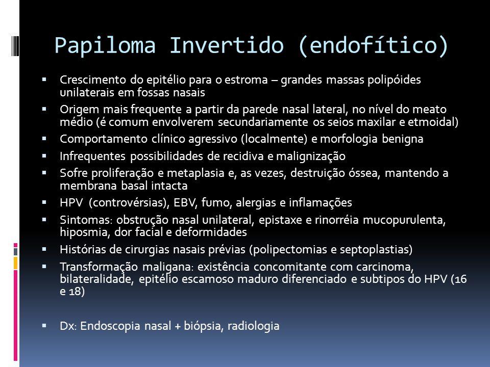 Papiloma Invertido (endofítico) Crescimento do epitélio para o estroma – grandes massas polipóides unilaterais em fossas nasais Origem mais frequente a partir da parede nasal lateral, no nível do meato médio (é comum envolverem secundariamente os seios maxilar e etmoidal) Comportamento clínico agressivo (localmente) e morfologia benigna Infrequentes possibilidades de recidiva e malignização Sofre proliferação e metaplasia e, as vezes, destruição óssea, mantendo a membrana basal intacta HPV (controvérsias), EBV, fumo, alergias e inflamações Sintomas: obstrução nasal unilateral, epistaxe e rinorréia mucopurulenta, hiposmia, dor facial e deformidades Histórias de cirurgias nasais prévias (polipectomias e septoplastias) Transformação maligana: existência concomitante com carcinoma, bilateralidade, epitélio escamoso maduro diferenciado e subtipos do HPV (16 e 18) Dx: Endoscopia nasal + biópsia, radiologia