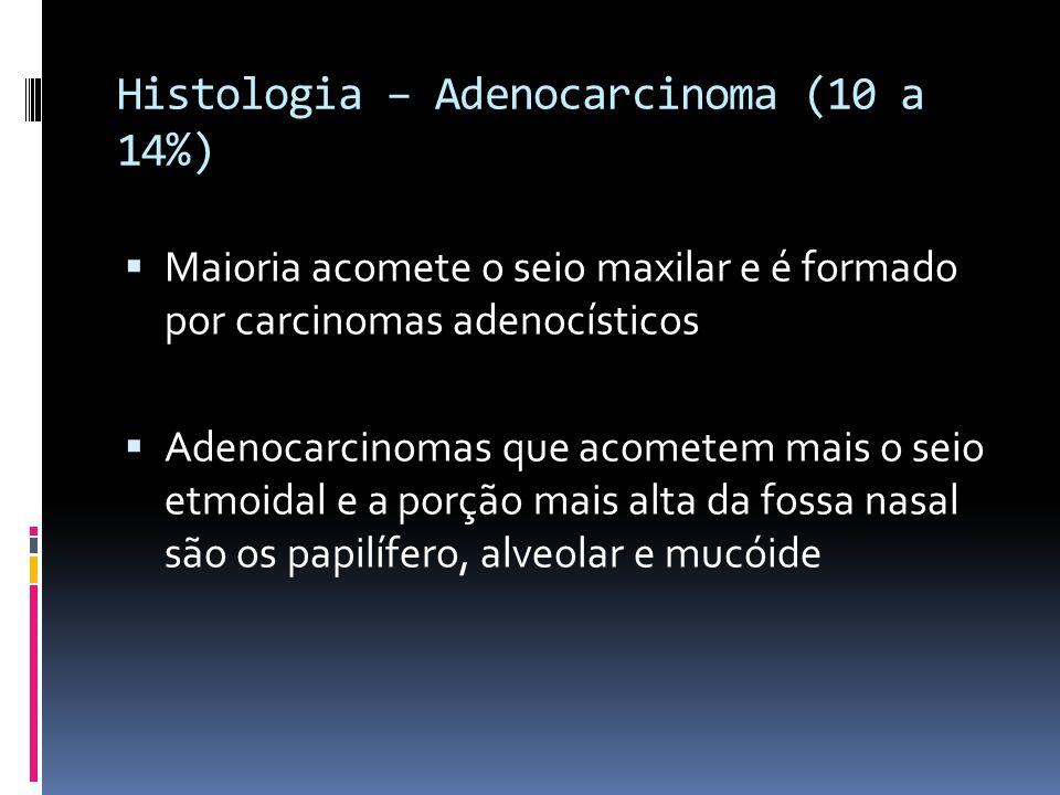 Histologia – Adenocarcinoma (10 a 14%) Maioria acomete o seio maxilar e é formado por carcinomas adenocísticos Adenocarcinomas que acometem mais o seio etmoidal e a porção mais alta da fossa nasal são os papilífero, alveolar e mucóide