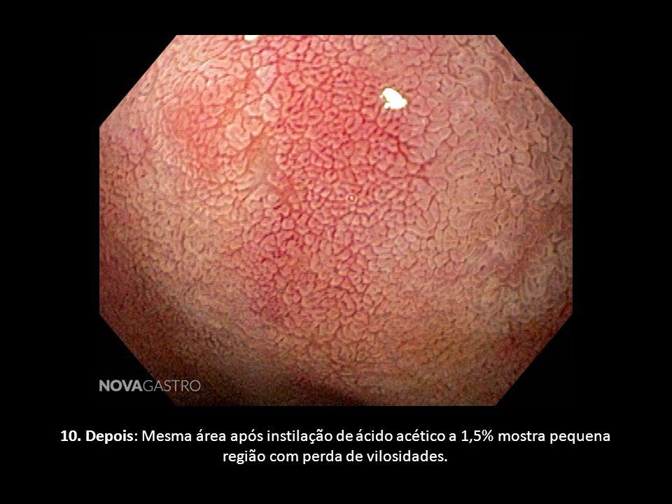 10. Depois: Mesma área após instilação de ácido acético a 1,5% mostra pequena região com perda de vilosidades.