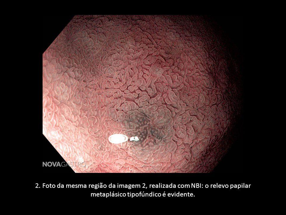 2. Foto da mesma região da imagem 2, realizada com NBI: o relevo papilar metaplásico tipofúndico é evidente.