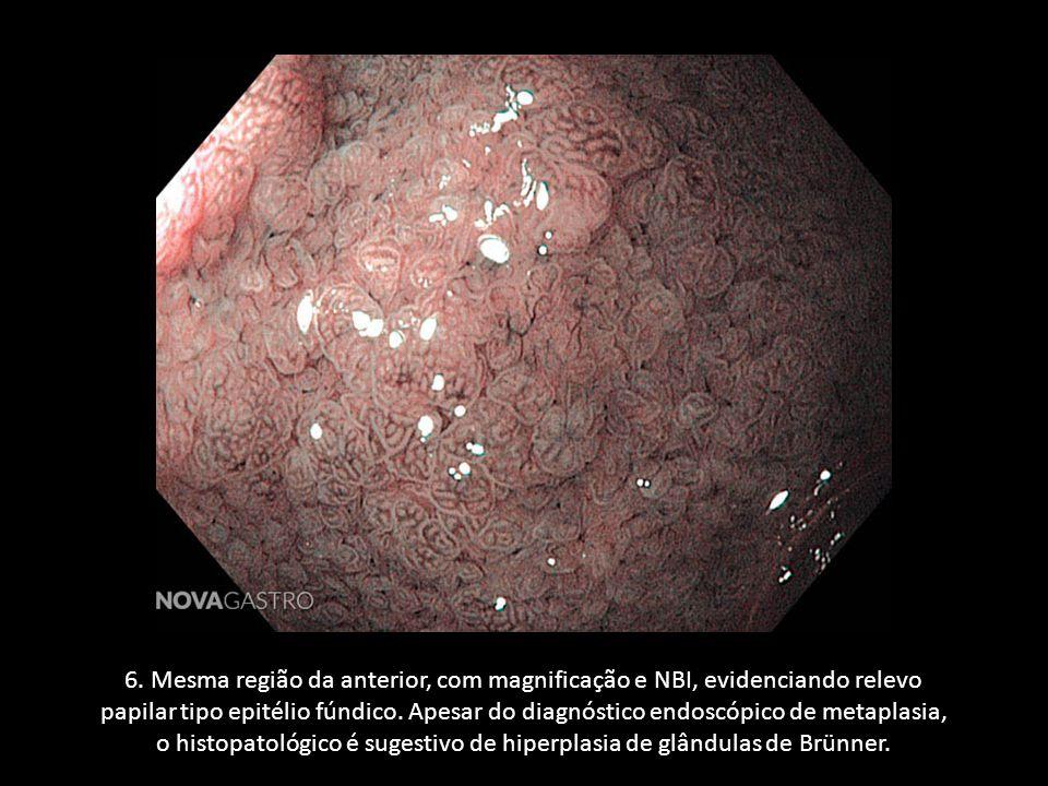 6. Mesma região da anterior, com magnificação e NBI, evidenciando relevo papilar tipo epitélio fúndico. Apesar do diagnóstico endoscópico de metaplasi