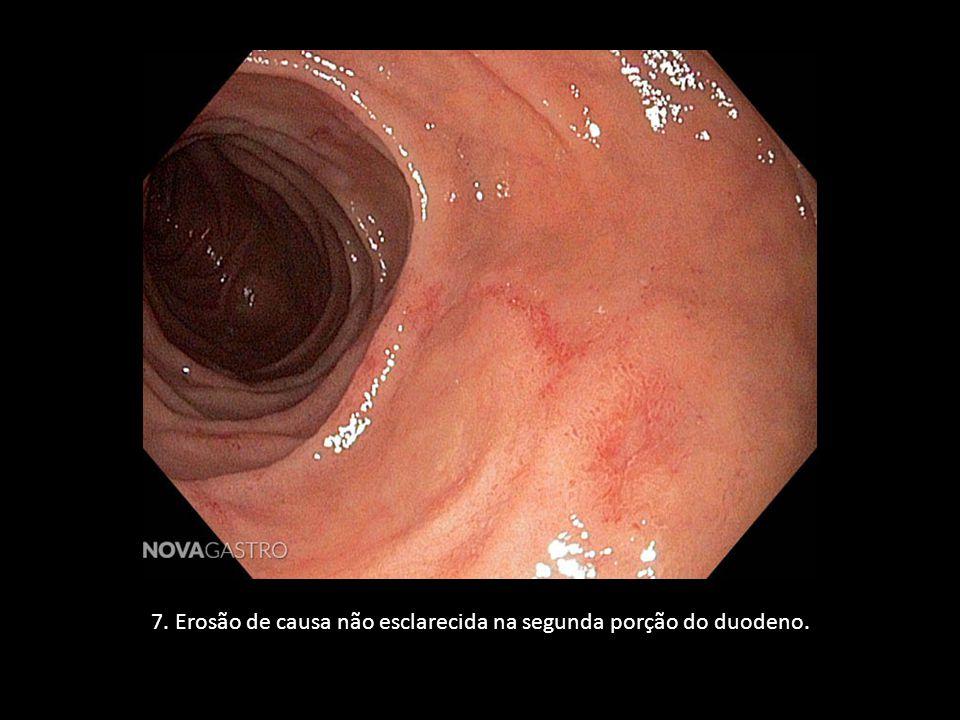 7. Erosão de causa não esclarecida na segunda porção do duodeno.