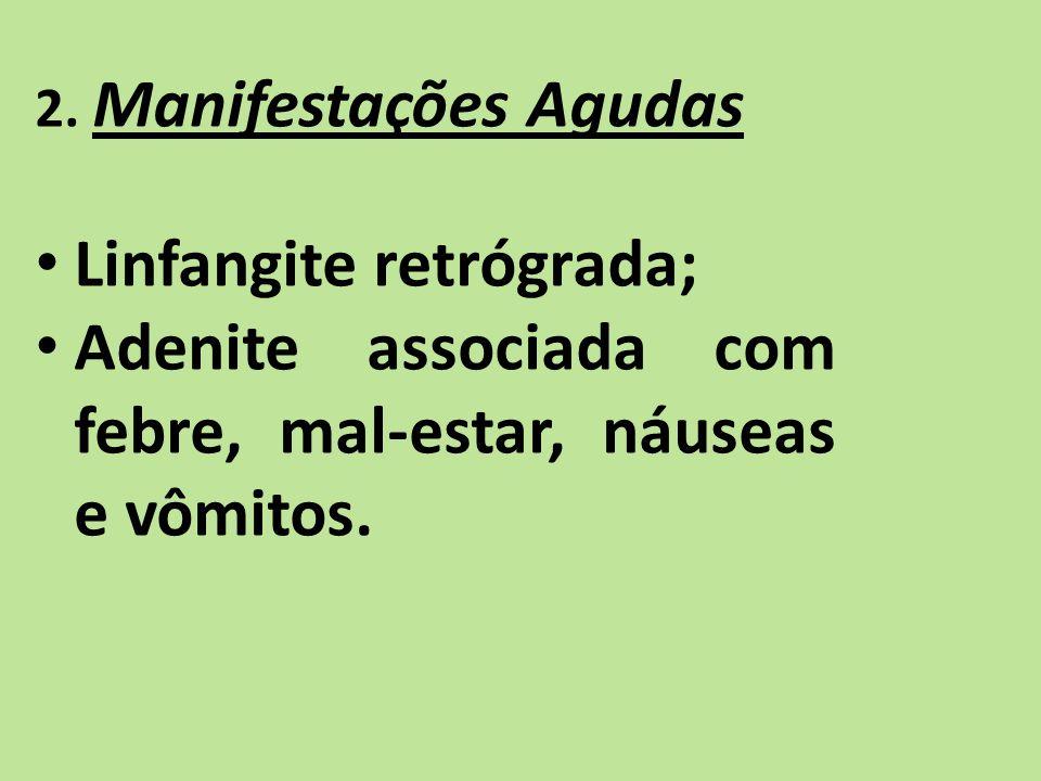 2. Manifestações Agudas Linfangite retrógrada; Adenite associada com febre, mal-estar, náuseas e vômitos.