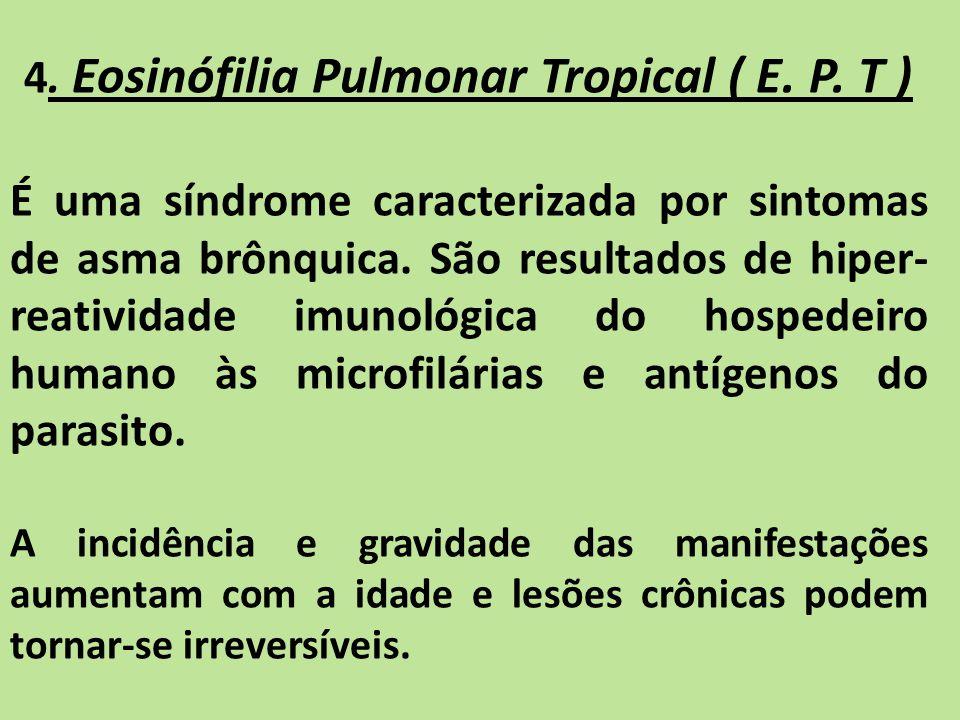 4. Eosinófilia Pulmonar Tropical ( E. P. T ) É uma síndrome caracterizada por sintomas de asma brônquica. São resultados de hiper- reatividade imunoló