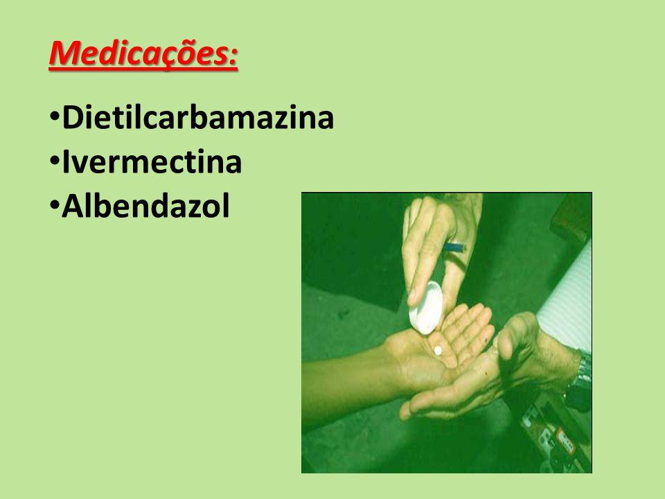 Medicações : Dietilcarbamazina Ivermectina Albendazol