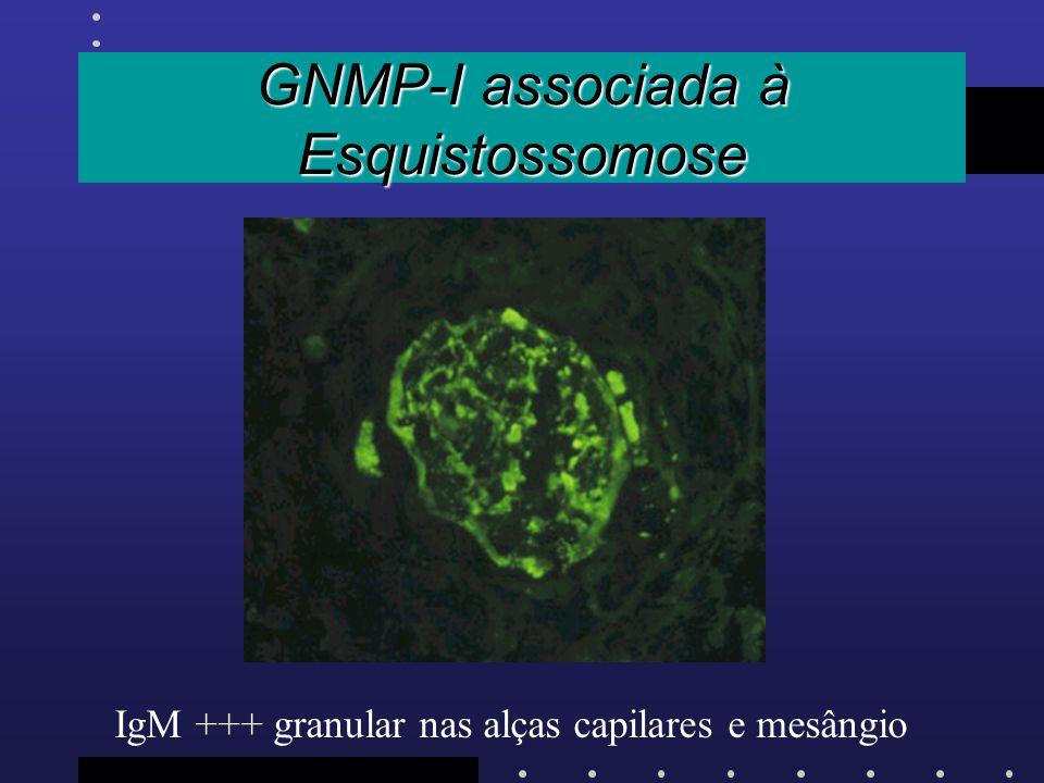 GNMP-I associada à Esquistossomose IgM +++ granular nas alças capilares e mesângio