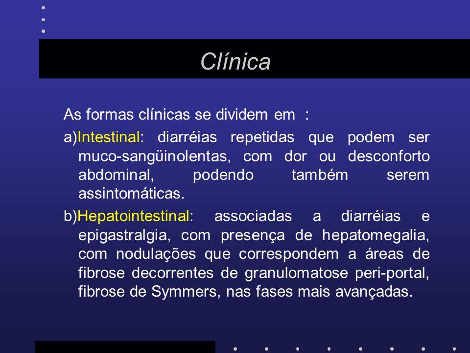 Clínica As formas clínicas se dividem em : a)Intestinal: diarréias repetidas que podem ser muco-sangüinolentas, com dor ou desconforto abdominal, pode