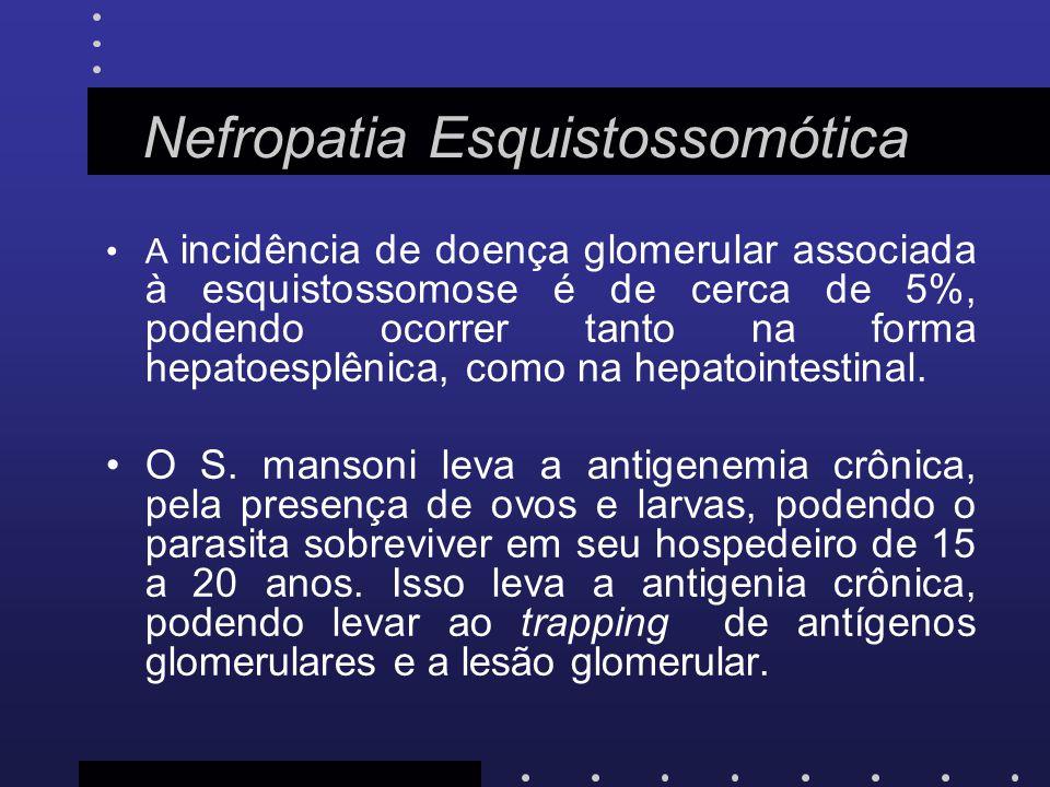 Nefropatia Esquistossomótica A incidência de doença glomerular associada à esquistossomose é de cerca de 5%, podendo ocorrer tanto na forma hepatoespl