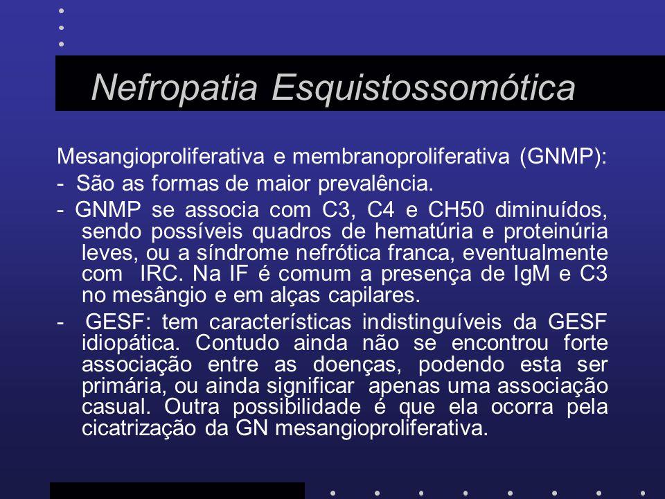 Nefropatia Esquistossomótica Mesangioproliferativa e membranoproliferativa (GNMP): - São as formas de maior prevalência. - GNMP se associa com C3, C4