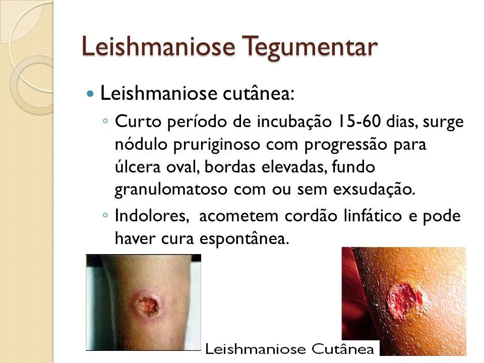 Leishmaniose Tegumentar Leishmaniose cutânea: Curto período de incubação 15-60 dias, surge nódulo pruriginoso com progressão para úlcera oval, bordas