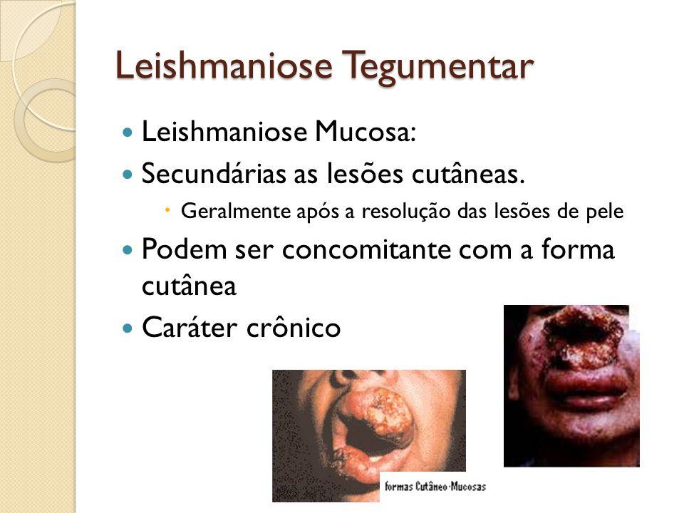 Leishmaniose Mucosa: Secundárias as lesões cutâneas. Geralmente após a resolução das lesões de pele Podem ser concomitante com a forma cutânea Caráter