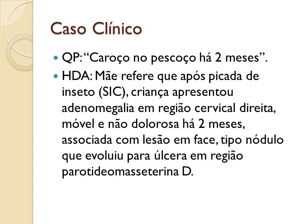 Caso Clínico QP: Caroço no pescoço há 2 meses. HDA: Mãe refere que após picada de inseto (SIC), criança apresentou adenomegalia em região cervical dir