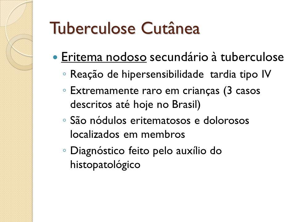 Tuberculose Cutânea Eritema nodoso secundário à tuberculose Reação de hipersensibilidade tardia tipo IV Extremamente raro em crianças (3 casos descrit