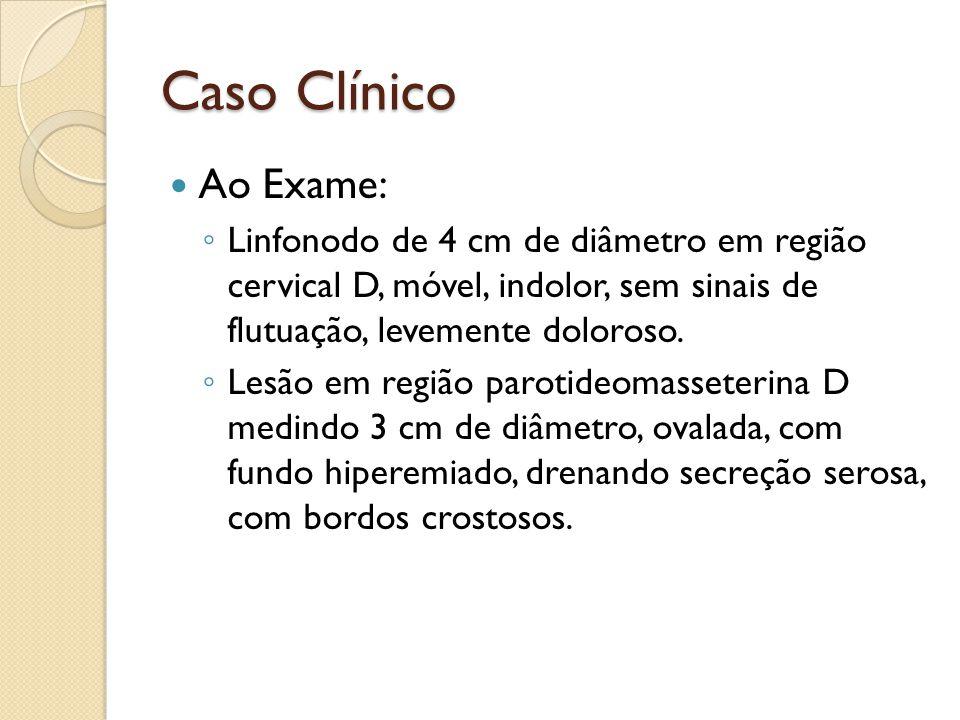 Caso Clínico Ao Exame: Linfonodo de 4 cm de diâmetro em região cervical D, móvel, indolor, sem sinais de flutuação, levemente doloroso. Lesão em regiã