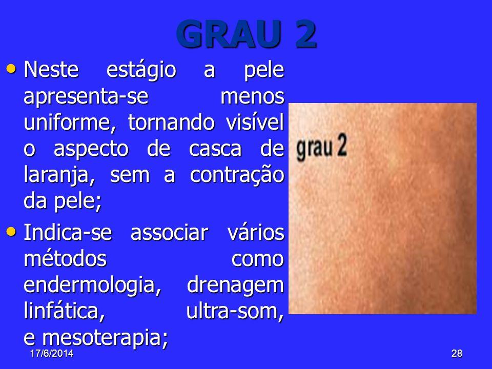 17/6/201428 GRAU 2 Neste estágio a pele apresenta-se menos uniforme, tornando visível o aspecto de casca de laranja, sem a contração da pele; Neste es