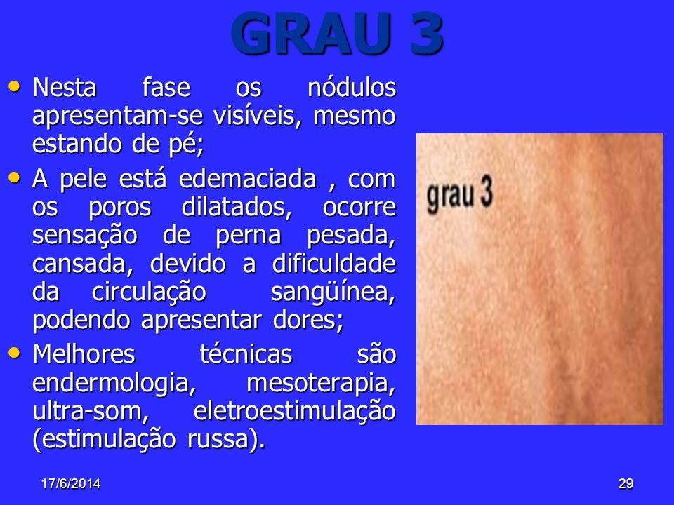 17/6/201429 GRAU 3 Nesta fase os nódulos apresentam-se visíveis, mesmo estando de pé; Nesta fase os nódulos apresentam-se visíveis, mesmo estando de p