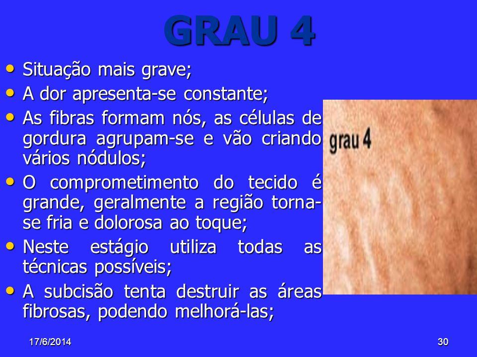 17/6/201430 GRAU 4 Situação mais grave; Situação mais grave; A dor apresenta-se constante; A dor apresenta-se constante; As fibras formam nós, as célu