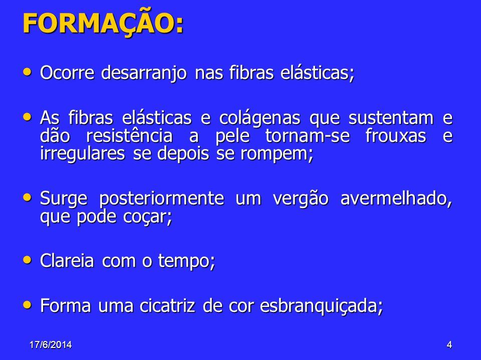 17/6/20144 FORMAÇÃO: Ocorre desarranjo nas fibras elásticas; Ocorre desarranjo nas fibras elásticas; As fibras elásticas e colágenas que sustentam e d
