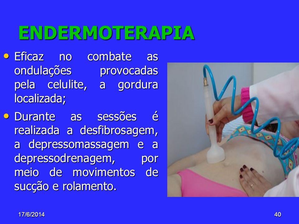 17/6/201440 ENDERMOTERAPIA Eficaz no combate as ondulações provocadas pela celulite, a gordura localizada; Eficaz no combate as ondulações provocadas