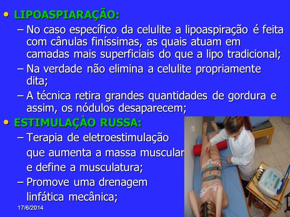 17/6/201441 LIPOASPIARAÇÃO: LIPOASPIARAÇÃO: –No caso específico da celulite a lipoaspiração é feita com cânulas finíssimas, as quais atuam em camadas