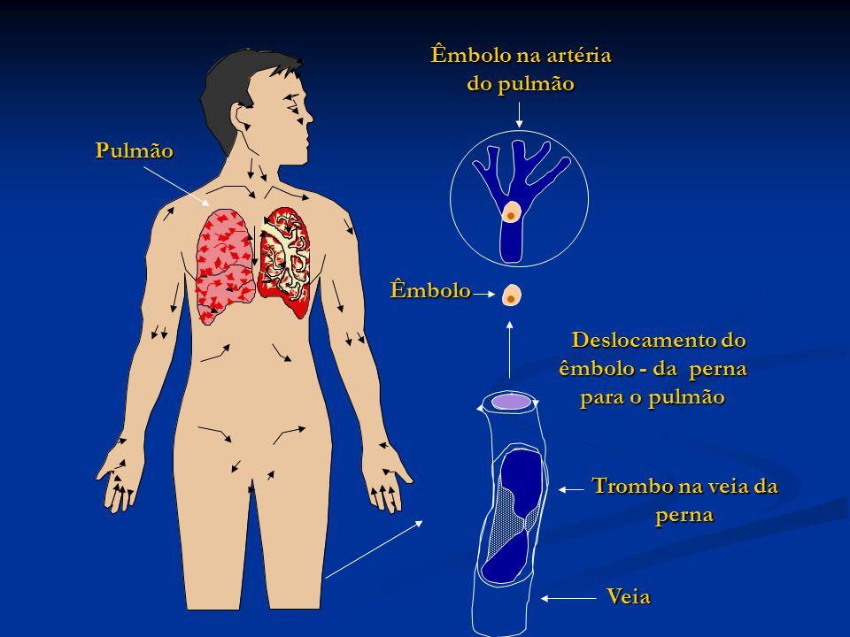 Deslocamento do êmbolo - da perna para o pulmão Deslocamento do êmbolo - da perna para o pulmão Êmbolo Trombo na veia da perna Êmbolo na artéria do pulmão Pulmão Veia