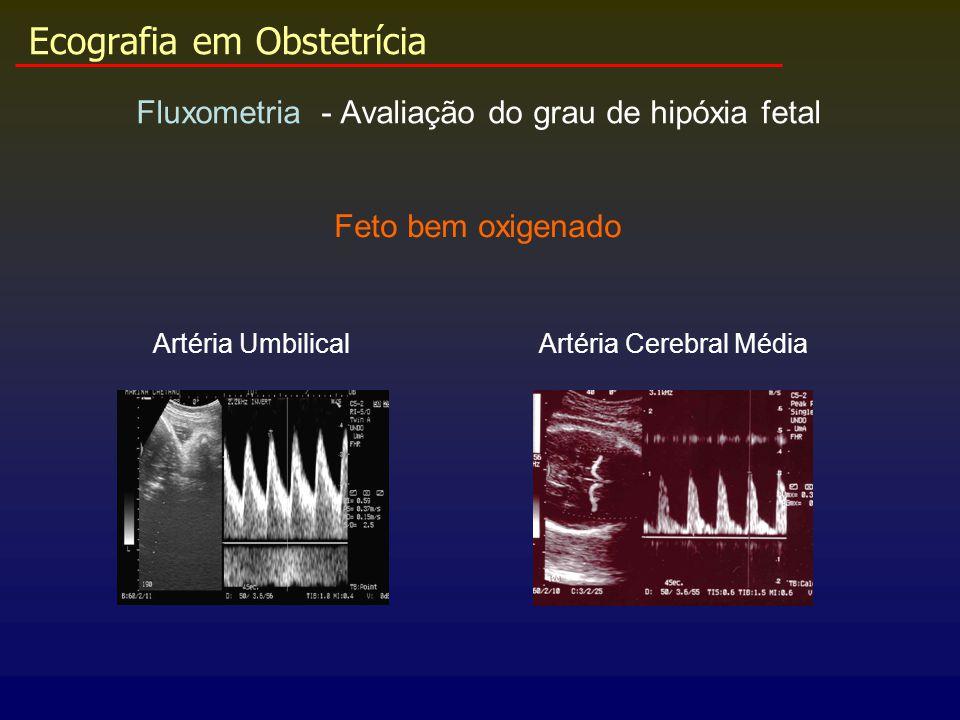 Ecografia em Obstetrícia Fluxometria - Avaliação do grau de hipóxia fetal Artéria UmbilicalArtéria Cerebral Média Feto bem oxigenado