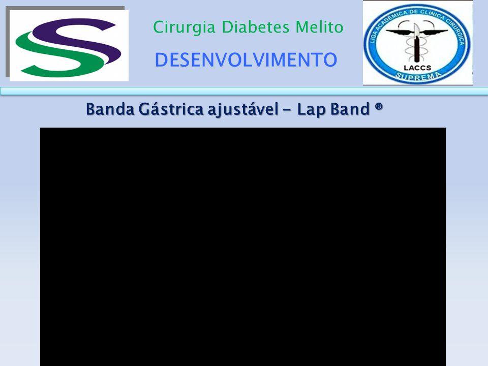 DESENVOLVIMENTO Cirurgia Diabetes Melito Banda Gástrica ajustável - Lap Band ® Banda Gástrica ajustável - Lap Band ®