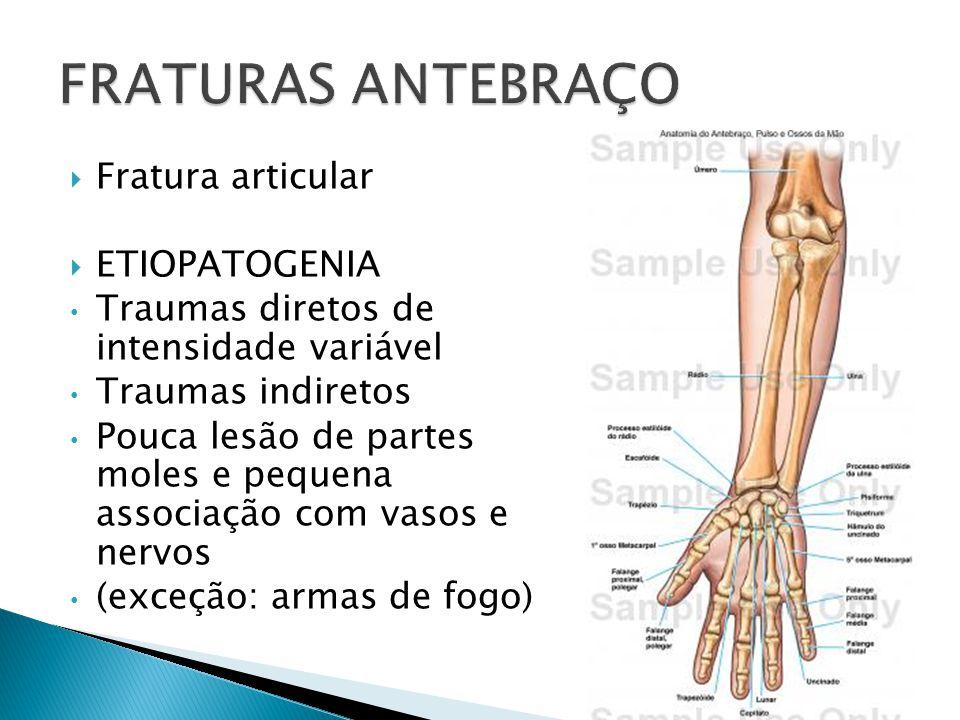 Fratura articular ETIOPATOGENIA Traumas diretos de intensidade variável Traumas indiretos Pouca lesão de partes moles e pequena associação com vasos e