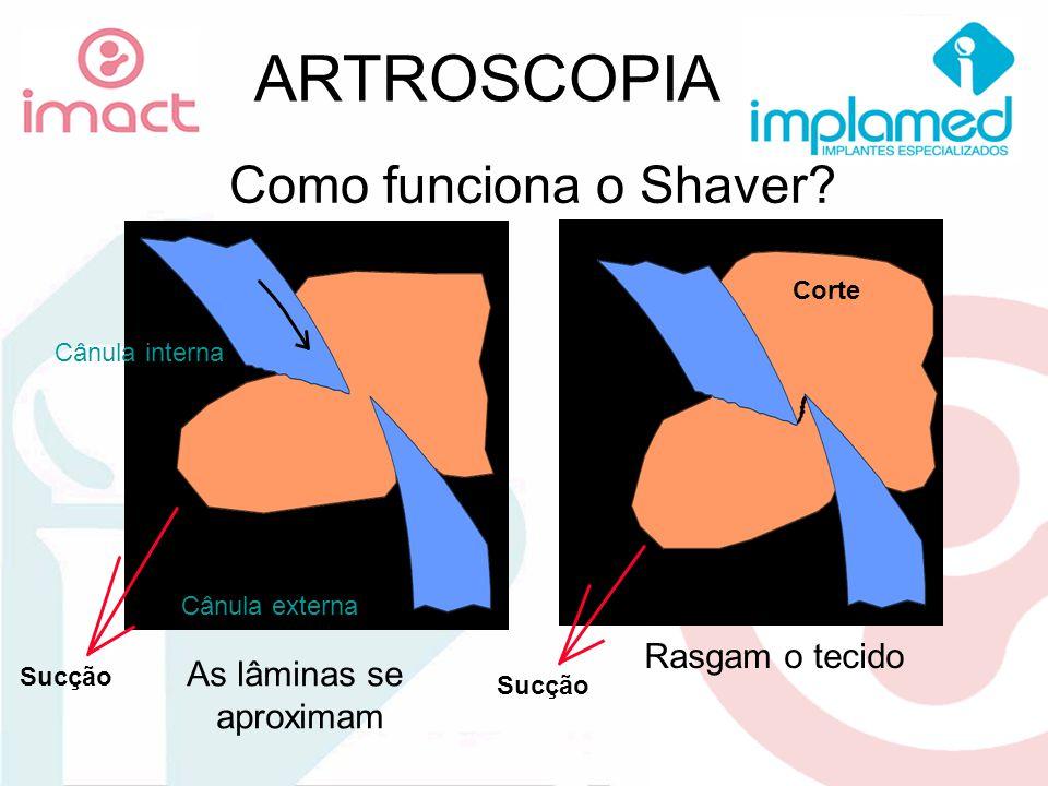 ARTROSCOPIA Cânula interna Cânula externa As lâminas se aproximam Rasgam o tecido Corte Sucção Como funciona o Shaver? Sucção