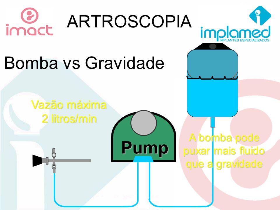 ARTROSCOPIA Bomba vs Gravidade Pump Vazão máxima 2 litros/min A bomba pode puxar mais fluido que a gravidade